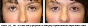 Before and After Revisonal Surgery on Scarred Canthus