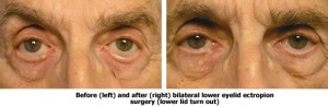 Before and After Bilateral Lower Eyelid Ectropion Surgery
