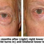 Before and After Right Lower Eyelid Entropion Surgery