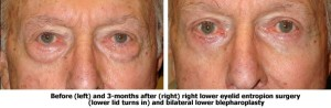 Los Angeles Entropion Repair & Surgery | Eyelid Surgery DR