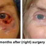 Before and After Surgery for Mohs Defect