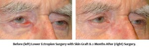 Before and After Ectropion Surgery with Skin Graft