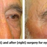 Before and After Eyelid Tumor Removal Surgery
