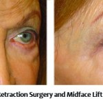 Before and After Lower Eyelid Retraction Surgery