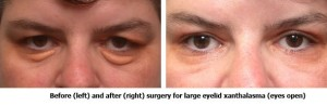 Before and After Surgery for Large Eyelid Xanthalasma