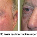 Before and After Malposition Ectropion Eyelid Surgery