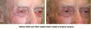 Before and After Eyelid Ectropion Surgery