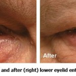 Before and After lower eyelid entropion surgery
