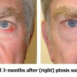 Before and After Ptosis Surgery & Blepharoplasty