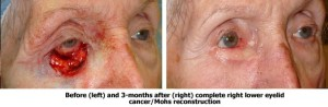 Before and After Mohs Reconstruction Surgery