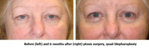 Before and After Ptosis Surgery and Quad-Blepharoplasty