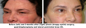 Before and After Ptosis Surgery, Quad-Blepharoplasty, and Brow Lift