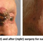 Before and After Ectropion Tumor Removal Surgery